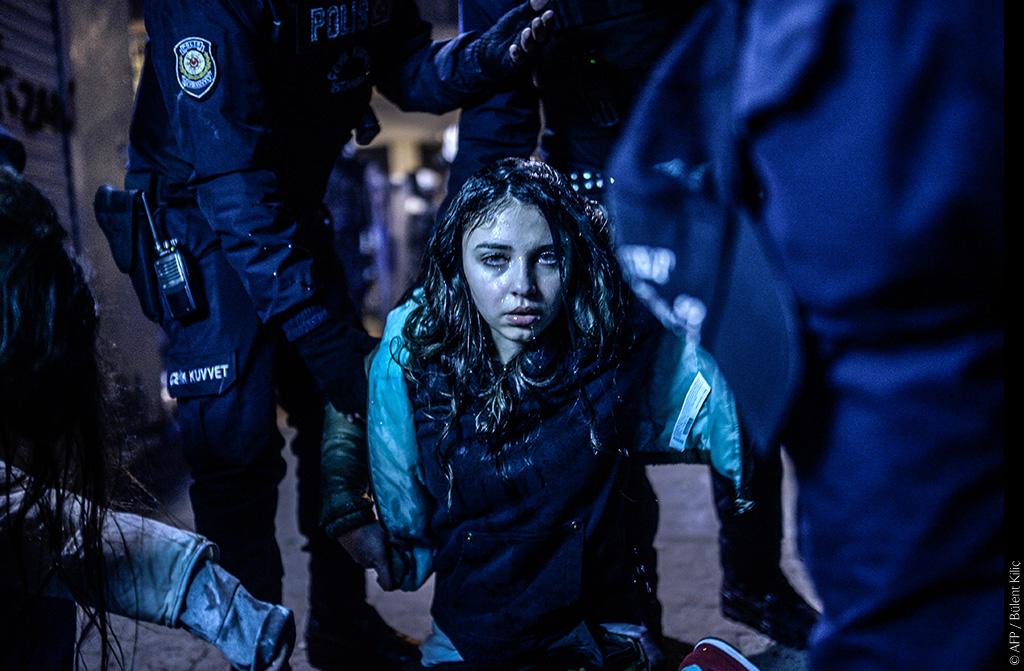 Uno sguardo sul mondo | BǛLENT KILIÇ - Visions of Turkey. Istanbul, 12 marzo 2014. Una giovane ragazza viene fotografata dopo essere stata ferita durante gli scontri avvenuti in seguito al funerale di Berkin Elvan, il quindicenne morto a Istanbul l'anno precedente per le ferite riportate durante le proteste anti-governative. © AFP/Bülent KiliçBulentKilic