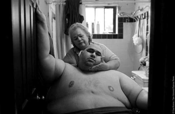 Spazio Tematico: Il cibo che uccide | LISA KRANTZ - A Life Apart: The Toll of Obesity. Novembre 2010. Con un peso di circa 270 Kg, Hector Garcia Jr. ha difficoltà nello svolgere normali attività quotidiane come il lavarsi. Fa fatica a camminare lungo il corridoio che porta dalla sua camera da letto al bagno, così che sua madre Elena possa lavarlo dopo avergli tagliato i capelli. Circa un mese prima Hector ha iniziato una dieta, dopo aver realizzato d'esser vicino al suo peso massimo di sempre di 289 Kg. © Lisa Krantz/San Antonio Express-News